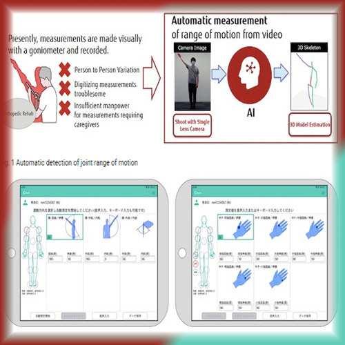 Fujitsu Launches AI-powered Physical Rehabilitation Solution 'HOPE ROMREC'